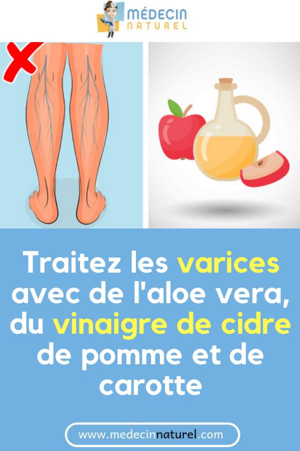 Vinaigre De Cidre Varices Avis : vinaigre, cidre, varices, Astuces, être, Belle, Naturellement
