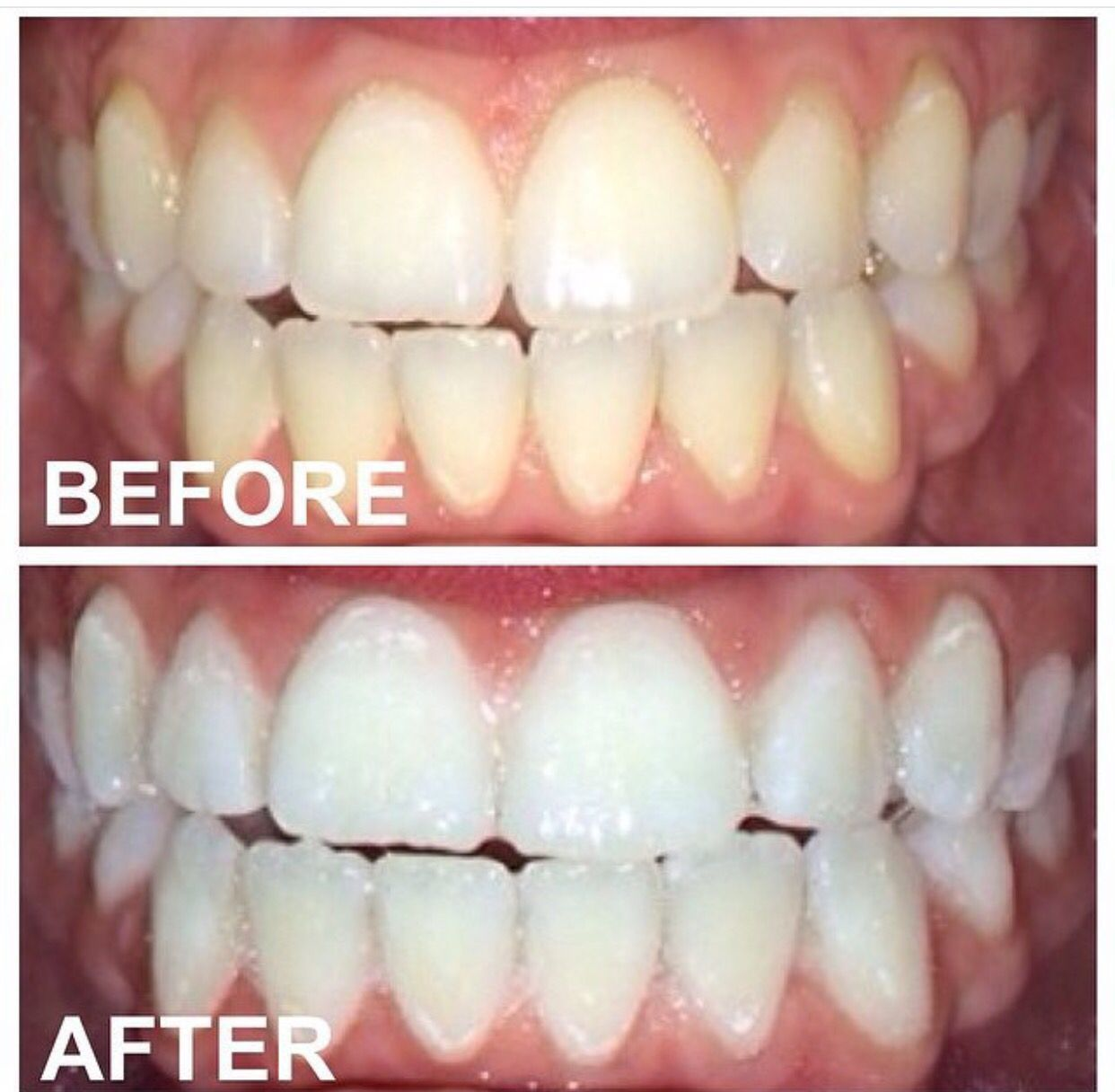 Colgate teeth whitening teeth whitening products pinterest teeth - Get Shades Whiter In A Hour Find This Pin And More On Beaming White Teeth
