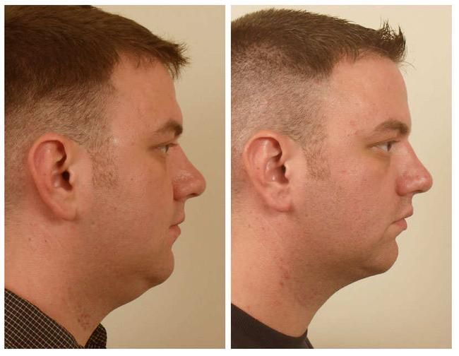 How to reduce face fat through yoga