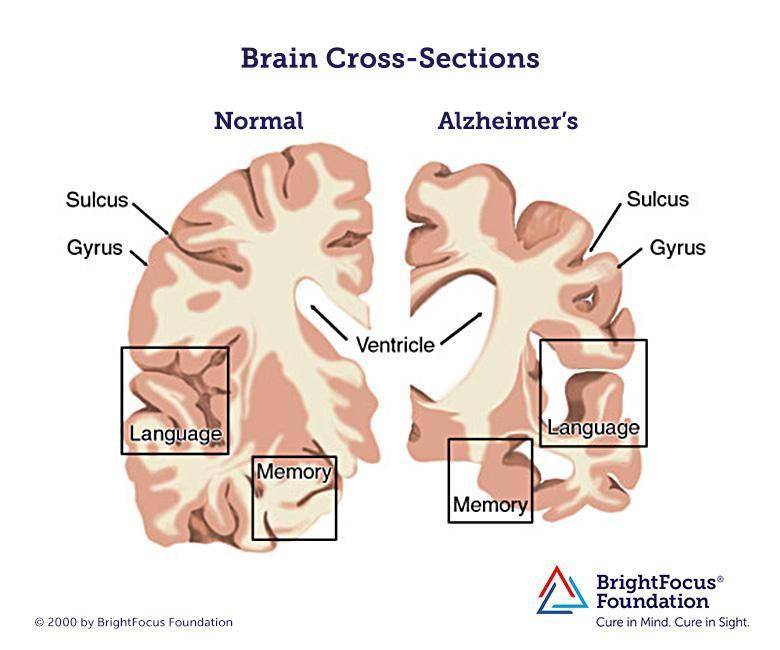 Brain with Alzheimer's Disease   Alzheimers, Alzheimer's ...