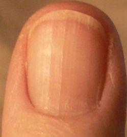 Vertical Fingernail Ridges And Remes