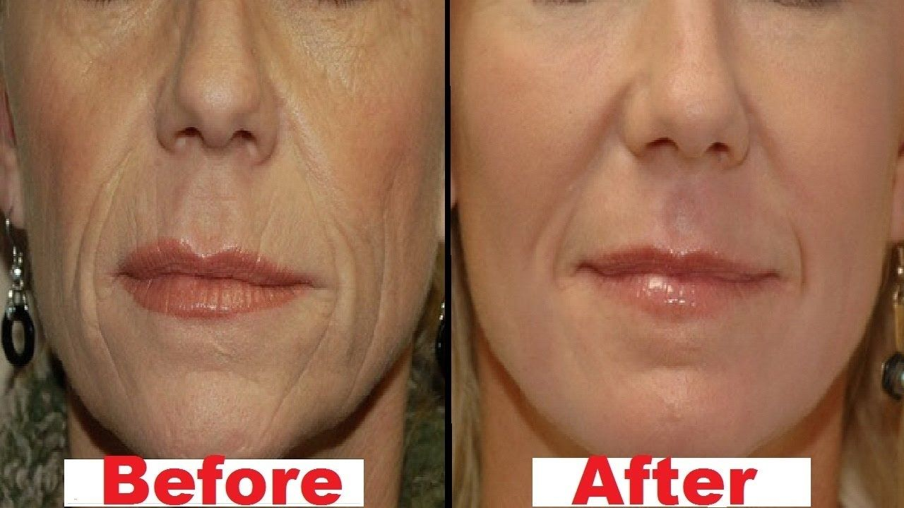 Pin By Tammy Conte On جمالك طبيعي Mouth Wrinkles Home Remedies For Wrinkles Face Care Wrinkles