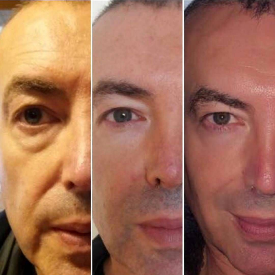 Before And After HIFU For Men   HIFU facelift   Side effects