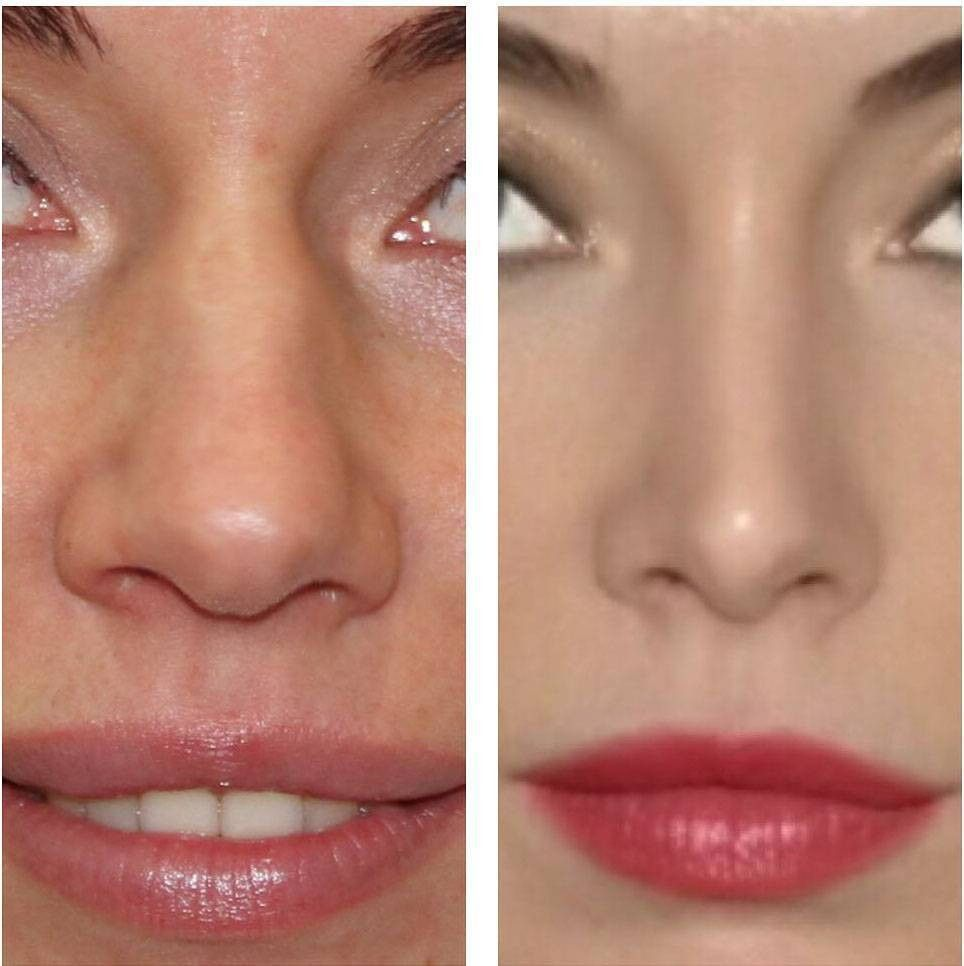 Pin by Monique Florence on The Plastics in 2019 | Rhinoplasty, Nose