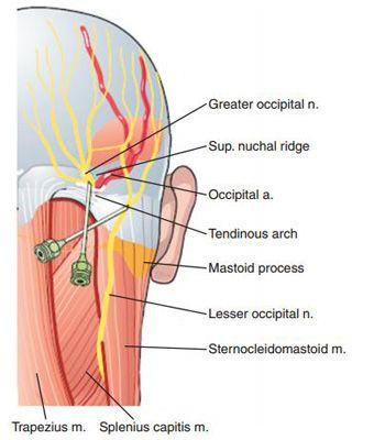 Neuralgia occipital dolor facial