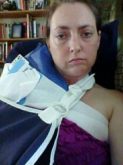 Day 1 after having shoulder surgery (had bone spurs and bursitis removed, had bicep tendon tear and rotator cuff tear repaired