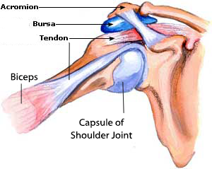 Natural Pain Relief For Torn Rotator Cuff