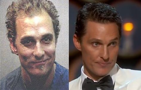 Before and After Photos of Matthew McConaughey's Hair Transplantation