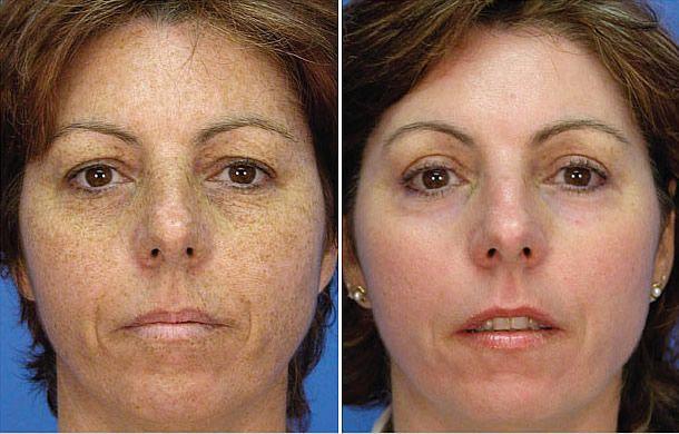 Picosure Laser Focus Pigment Laser Skin Treatment Skin Treatments Skin Rejuvenation