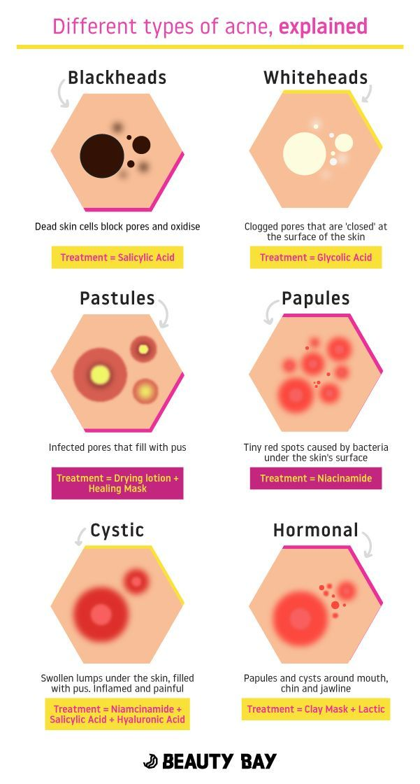 Different Types Of Acne, Explained #skincareroutine