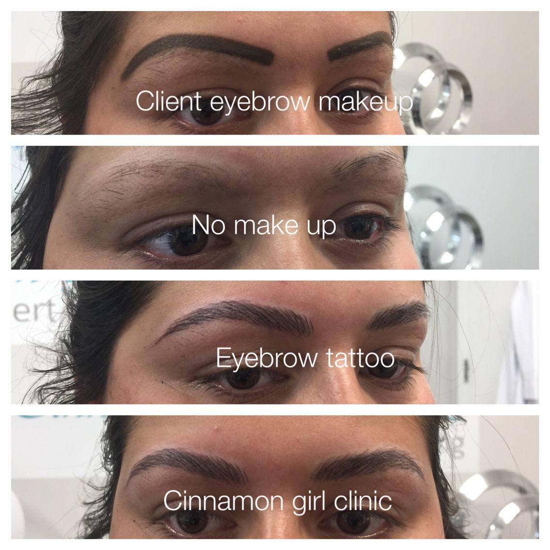 Eyebrow tattoo wwwcinnamongirlclinicca eyebrow tattoo