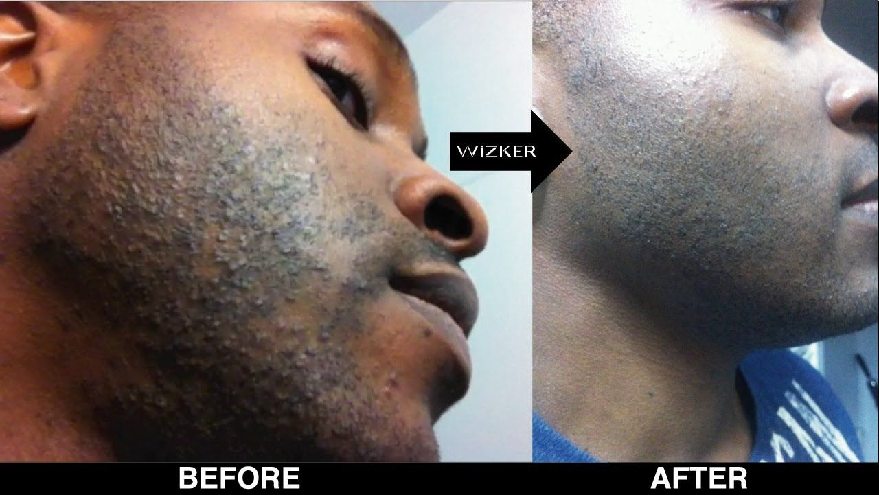 Razor Bumps On Neck  Prevent Razor Bumps Black Men