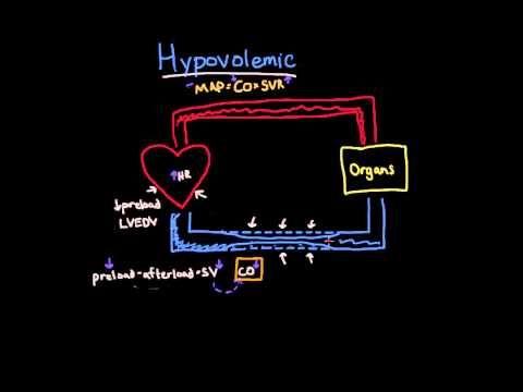 Hypovolemic Shock - YouTube | Medical School | Nursing courses
