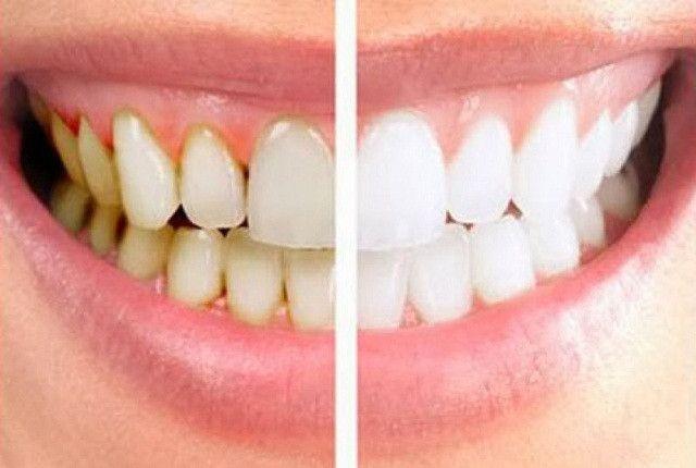 Cara Menghilangkan Karang Gigi Yang Sudah Mengeras Salah Satu Cara