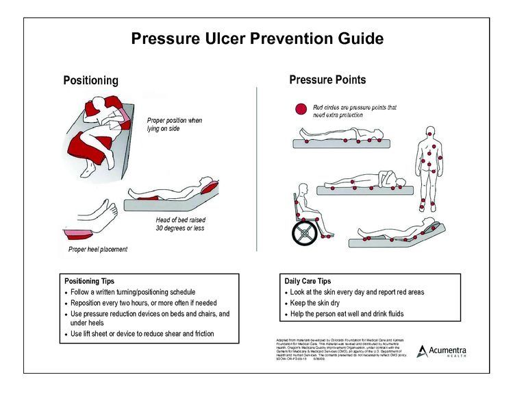 Positioning To Avoid Pressure Points Is Key Pressure Ulcer Bed Sores Wound Care