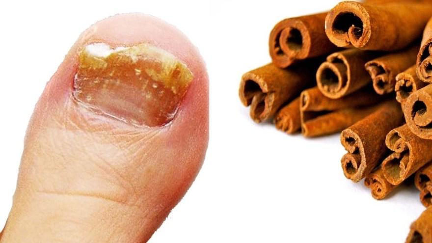 Potente germinicida hecho con CANELA que te ayudará erradicar los hongos de uñas y piel.