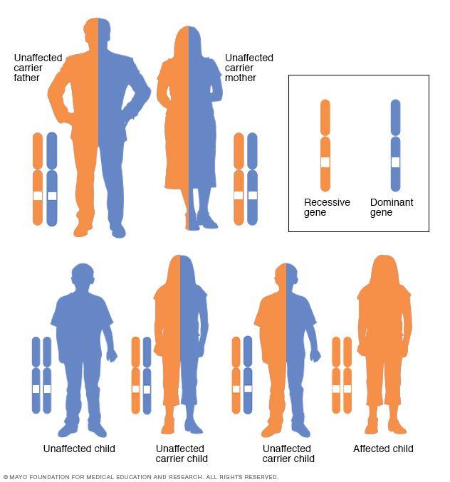 Epidermolysis Bullosa Natural Treatment
