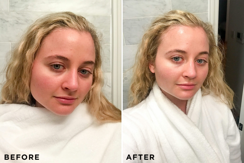 I Tested 6 Of The Best Redness Reducing Skincare Products Redness Reducer Rosacea Skin Care Reduce Face Redness