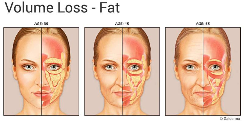 Looking Your Best in Your 40s - Rejuvent | Anatomy | Pinterest | Cirugia