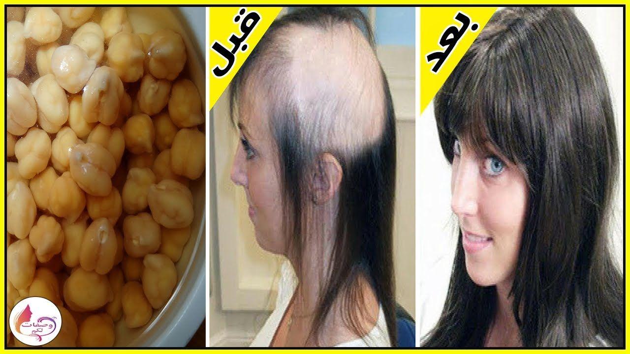 كنز رباني عظيم لن يتوقف شعرك عن النمو بغزارة دون توقف ولن يتساقط بعد اليوم ينبت الفراغات Youtube Beautiful Hair Hair Beauty
