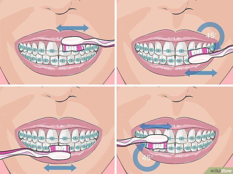 Deal with Braces Cute braces, Braces, Braces colors