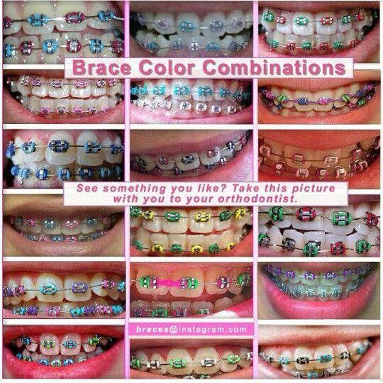 Color combinations   Cute braces, Teeth braces, Cute ...