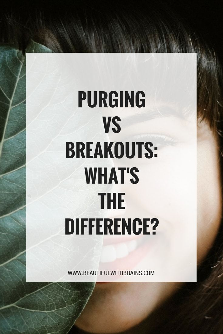 Purging VS Breaking Out How Can You Tell The Difference  Acne