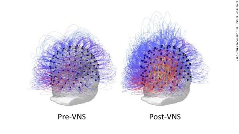 Photo of After 15 years in vegetative state, response to nerve stimulation