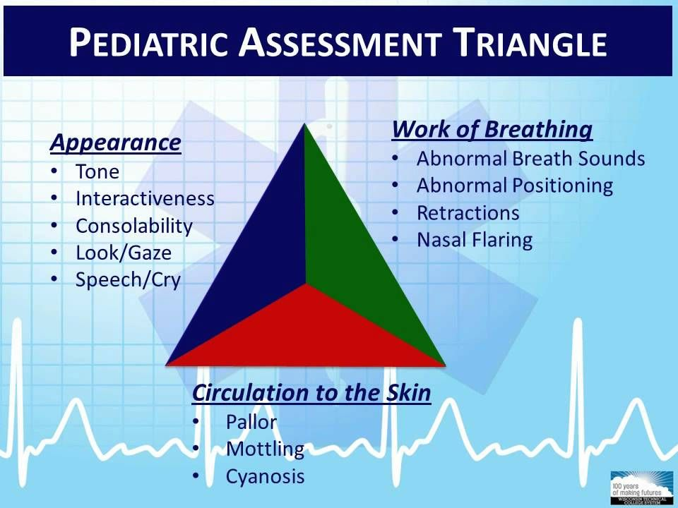 Image result for pediatric assessment triangle Emergency