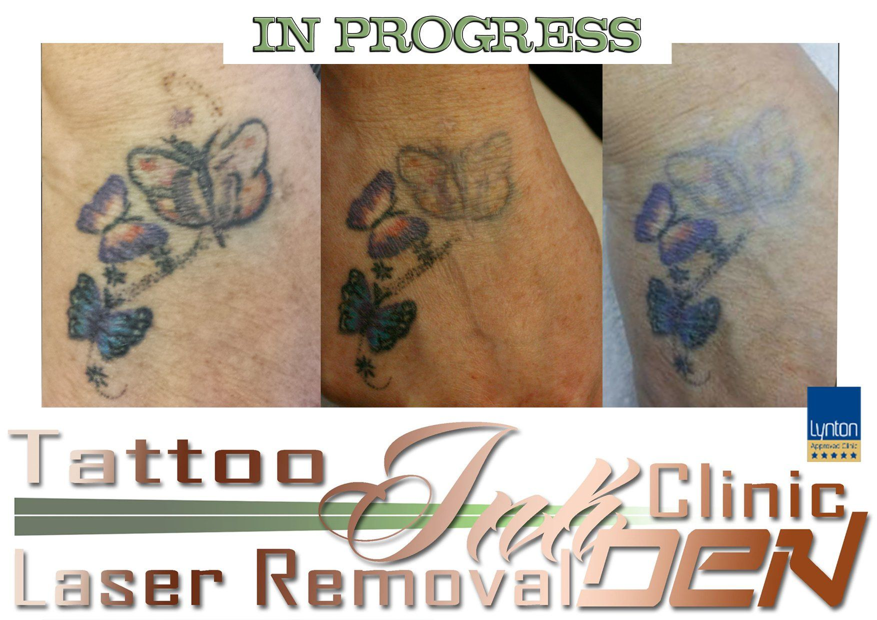 LASER TATTOO REMOVAL *** Do you have a tattoo you regret