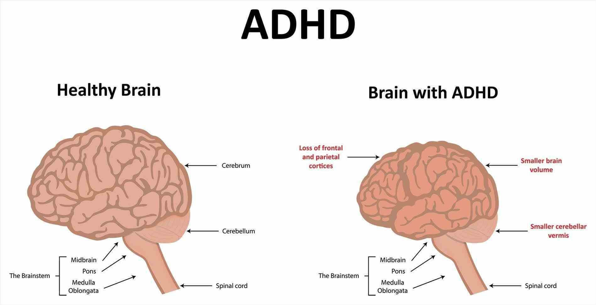 Adhd Brain Diagram Cross Section - Wiring Diagram & Electricity ...