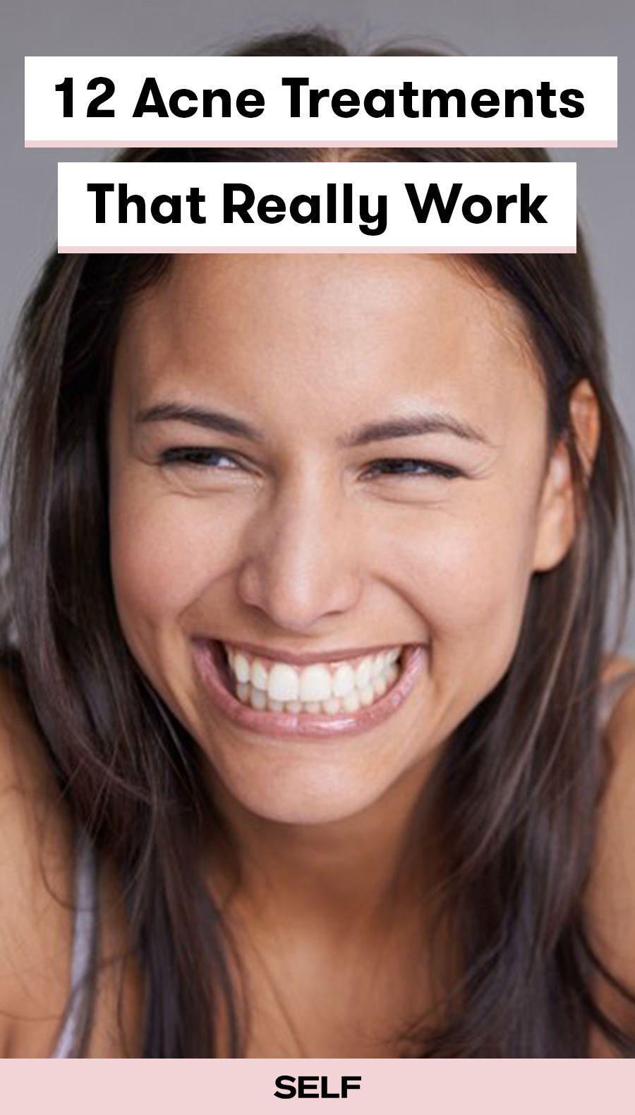 Acne Treatments That Really Work  Beauty  Pinterest  Acne