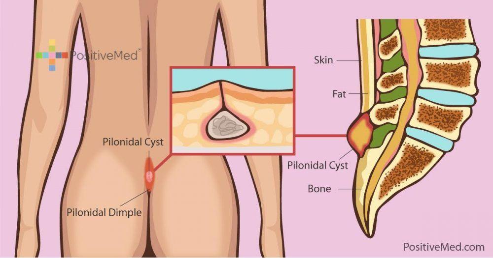 Pilonidal Abcess Natural Remedy