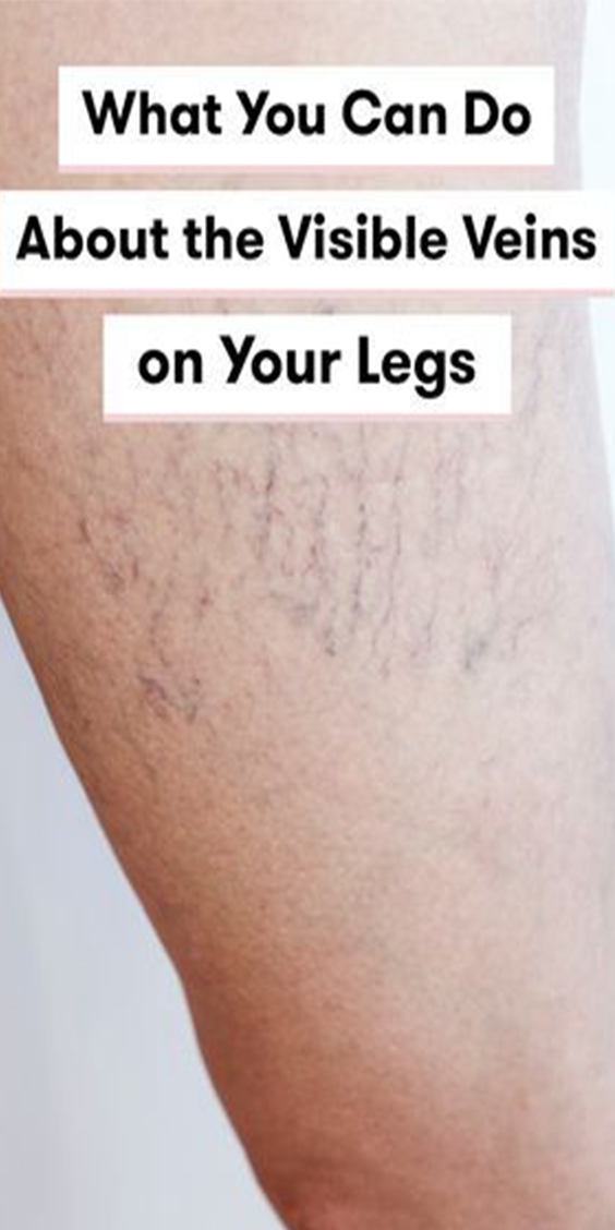 Here's What You Can Actually Do About the Visible Veins on