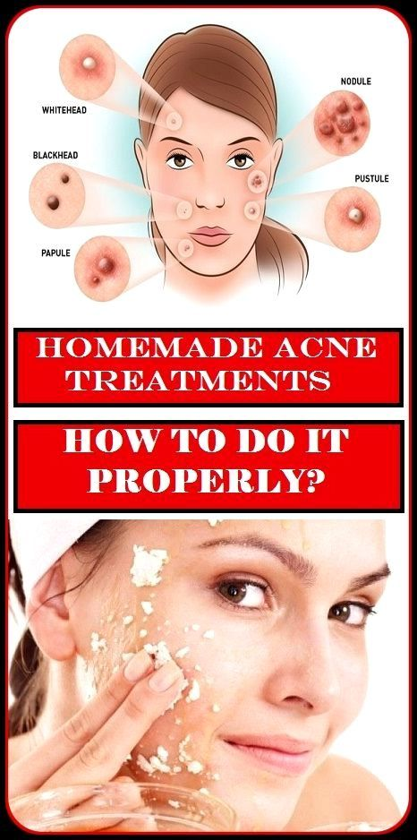 exactly to remove oily skin naturally home remedies for acne scarring overnighthome remedies for acne scarring overnight