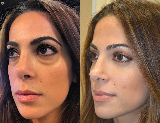 lower blepharoplasty for dark circles Google Search in ...
