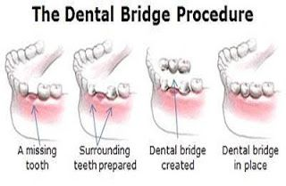 teeth covers for missing teeth