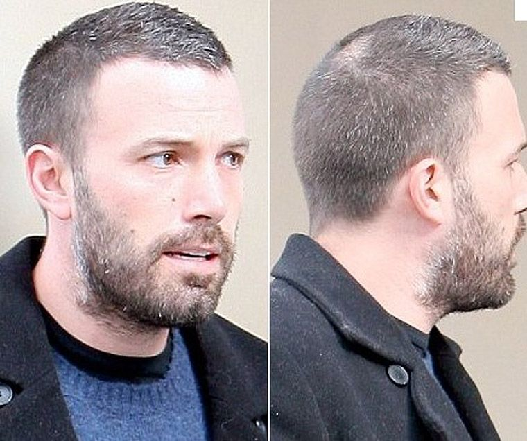 27+ Male celebrities with thinning hair ideas