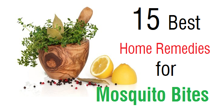 15 Best Home Remedies for Mosquito Bites Remedies for