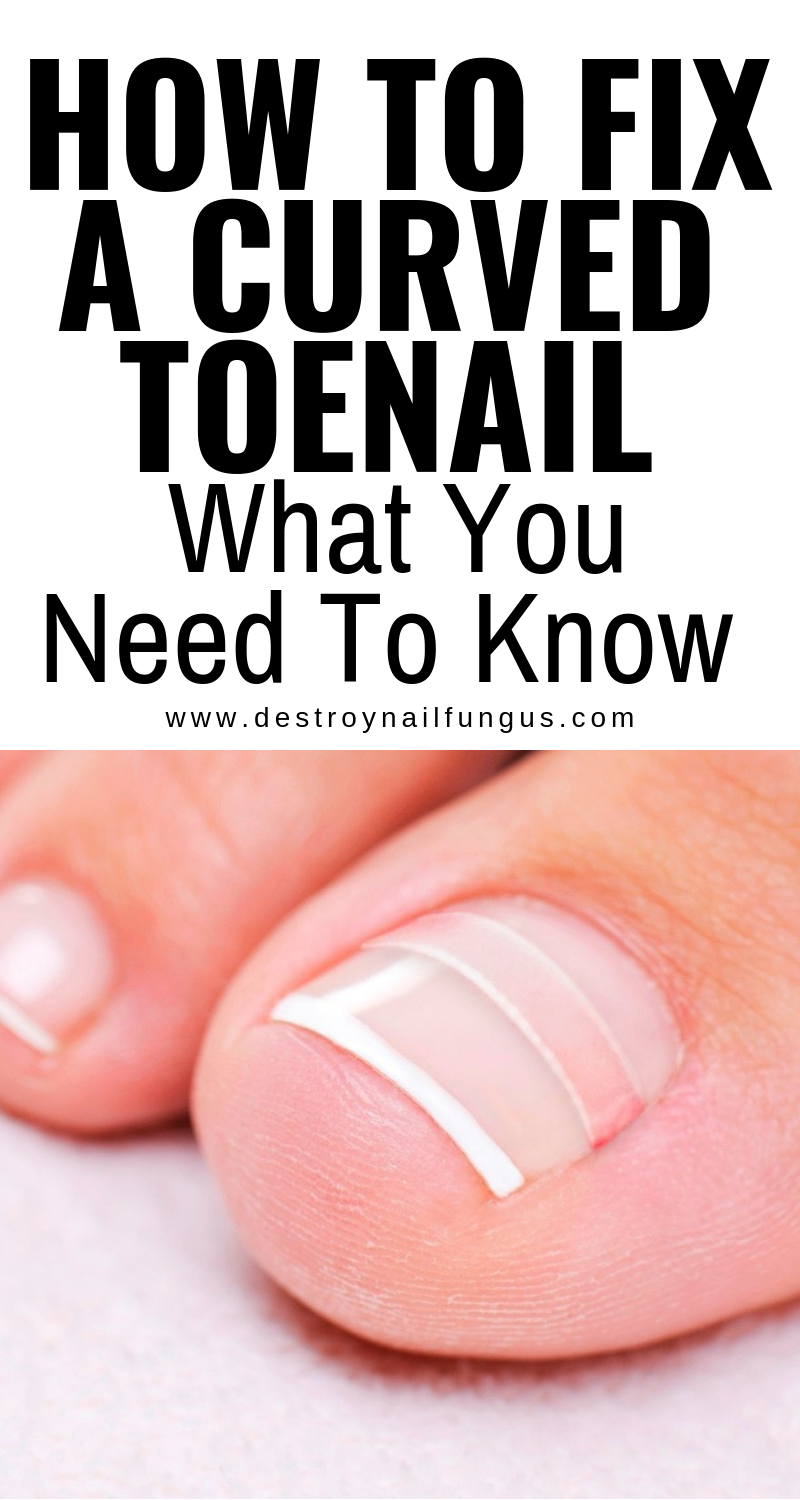 How To Fix Curved Toenails : curved, toenails, Curved, Toenail:, Ingrown, Nail,, Toenails,, Nails