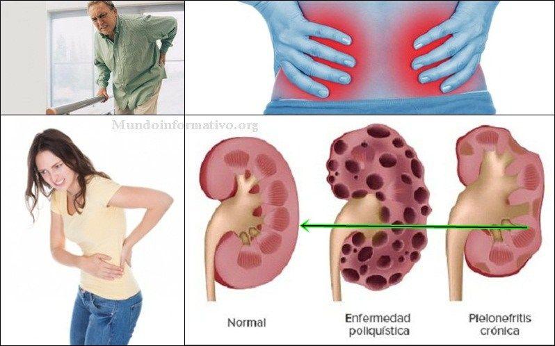 Los riñones son un par de órganos vitales que realizan varias ...