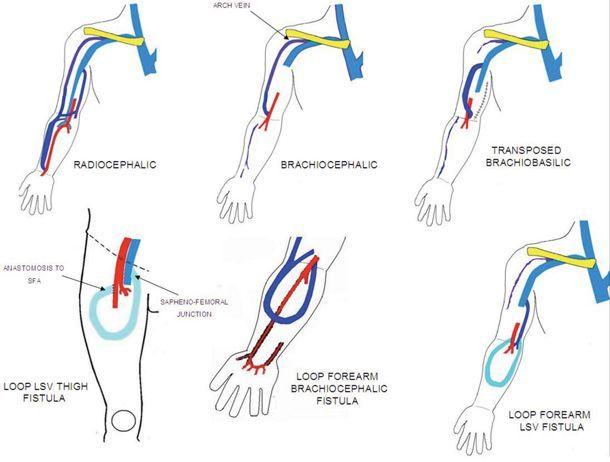 av fistula |  venous hemodialysis fistula: a vascular surgeons, Cephalic Vein