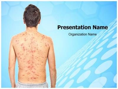 EditableMedicalTemplates presents state-of-the-art #Chickenpox - sample medical powerpoint template