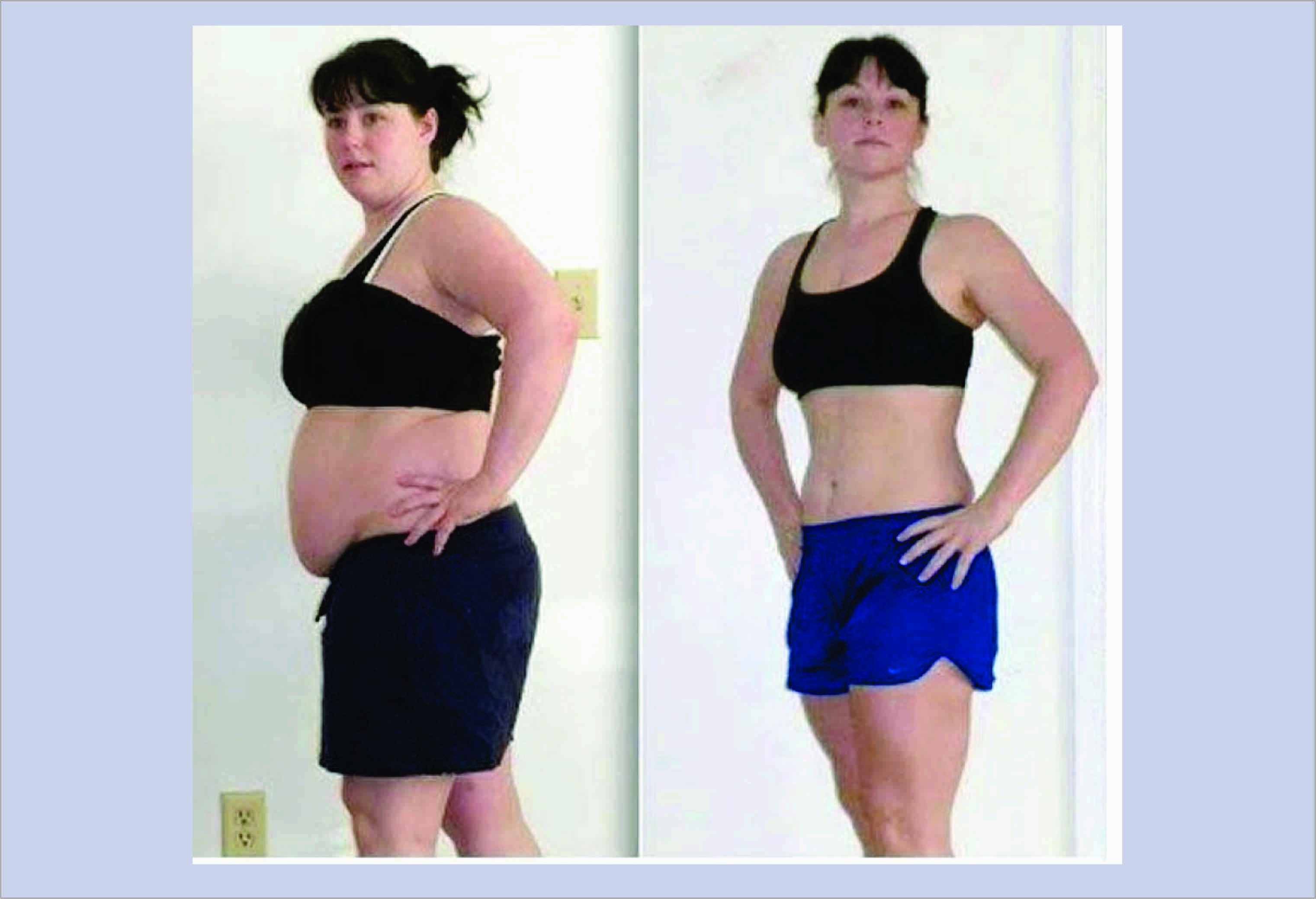 To reduce breast fat photo 1