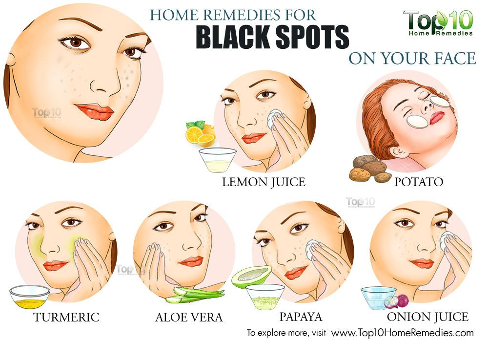 how to get rid of beauty marks on your face