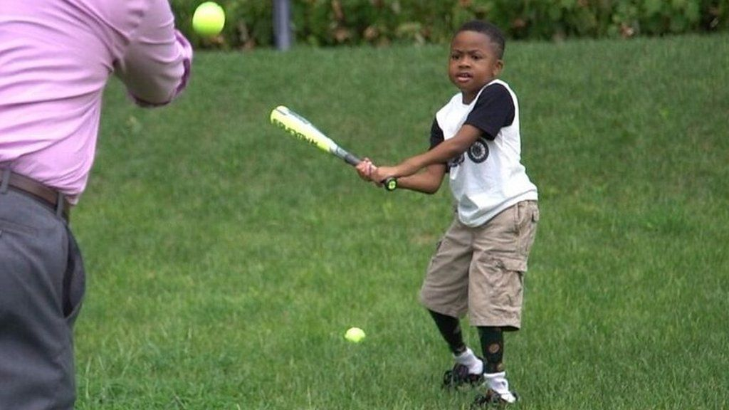 Doublehand transplant boy now does this play baseball