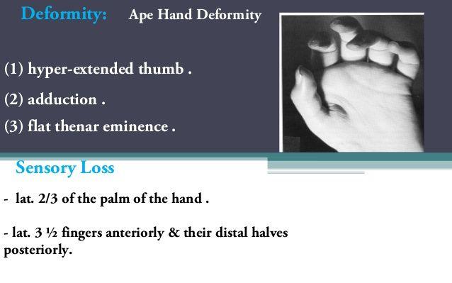 Image Result For Ape Hand Deformity Ortho Pinterest Hands