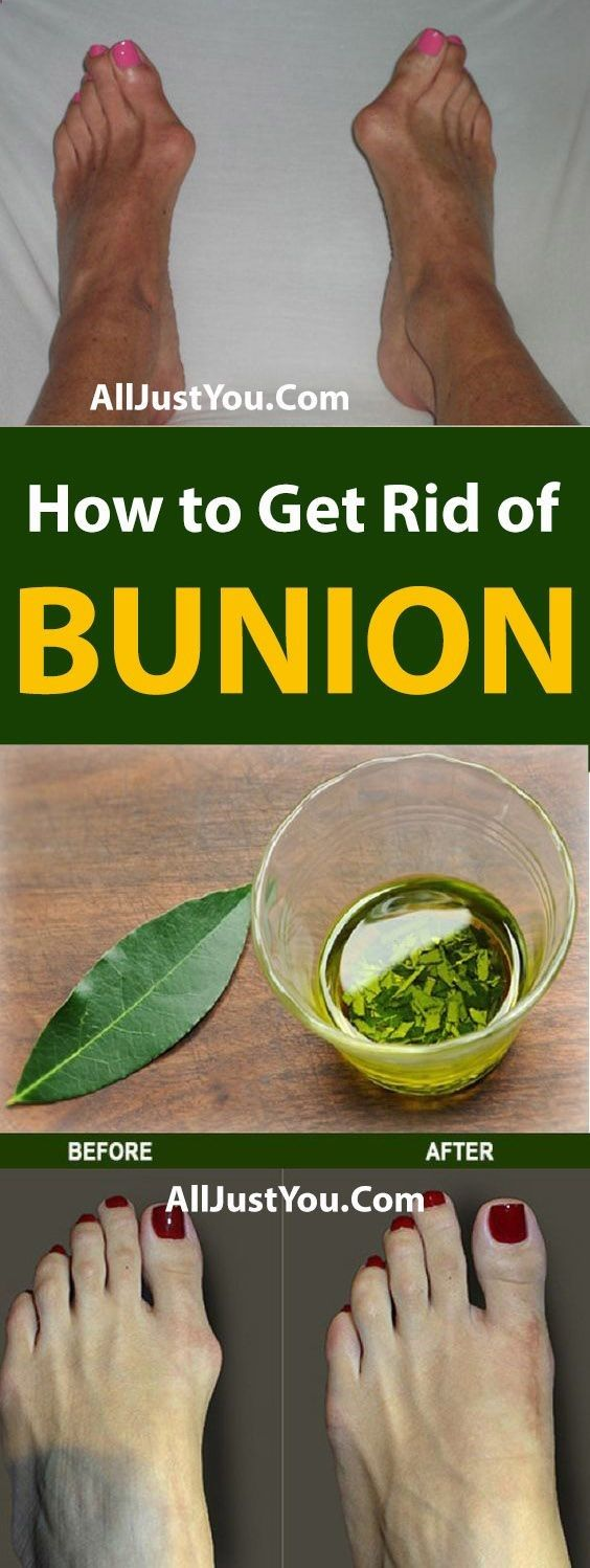 Get Rid of Bunions Naturally With This Simple But Powerful Remedy - #health #fitness #beauty #bunion...