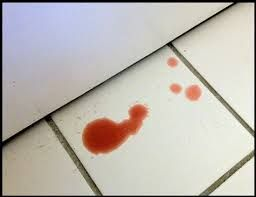 Cat Piss By Blood