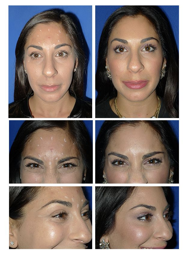 Before + After dysport (botox) injections. See the results ...